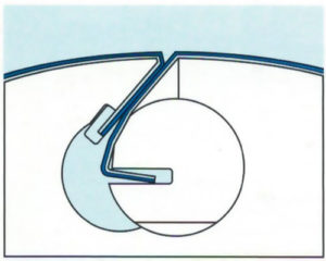 намоточно-стержневой замок для крепления офсетного полотна Goss Magnum 4